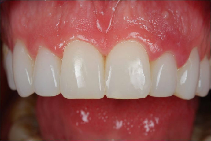 Компониры на зубы