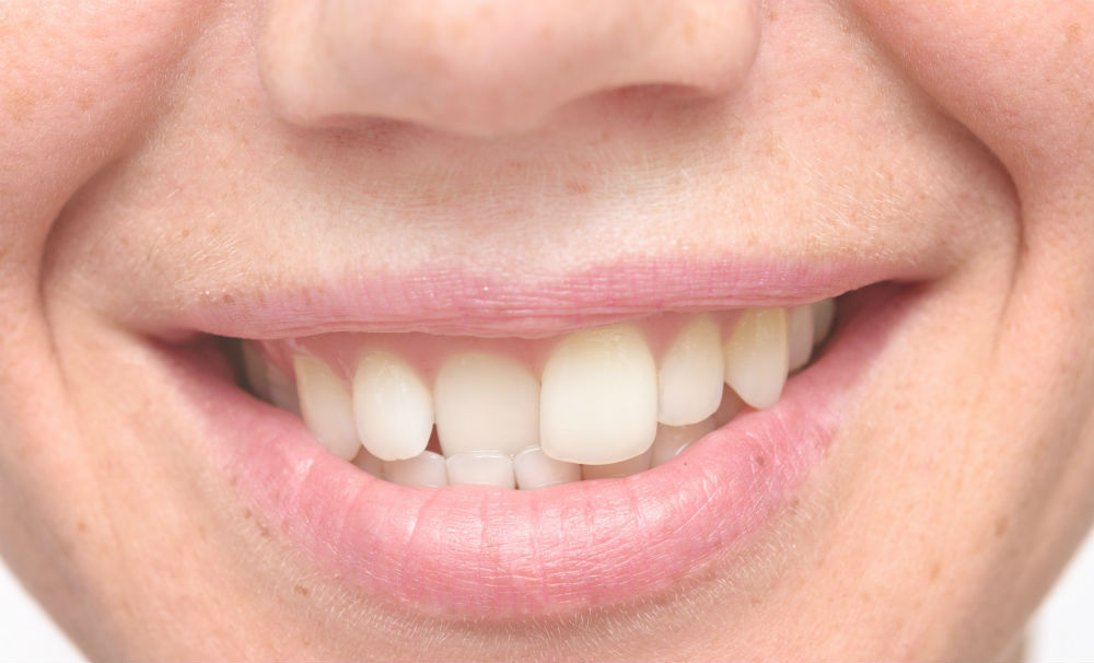 Кривой зуб