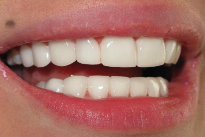 Люминиры на зубы фото