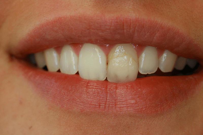 Пломба на переднем зубе