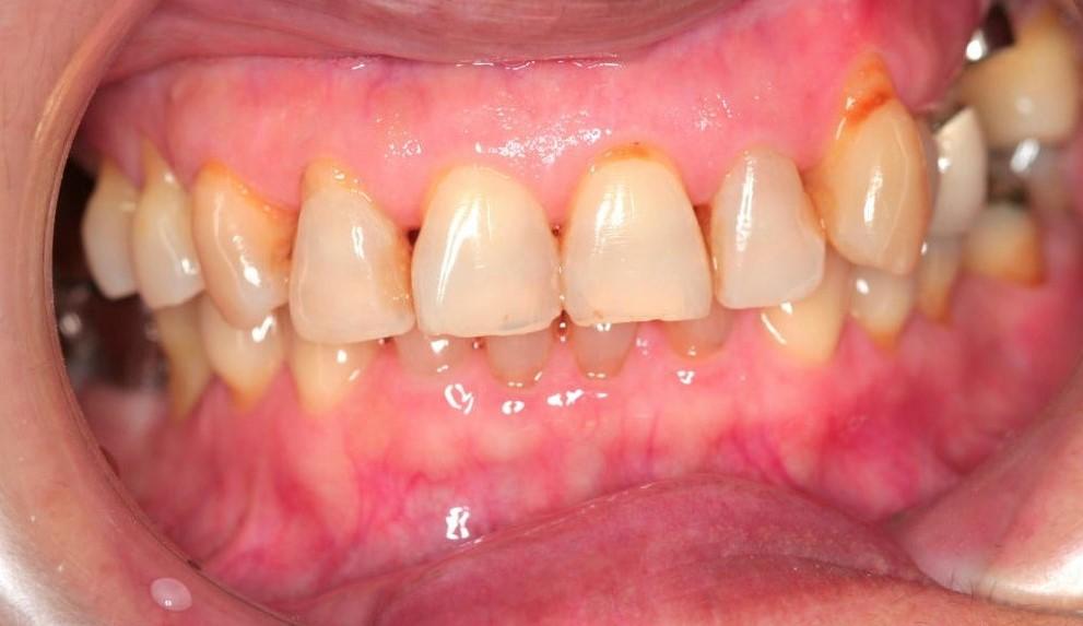 Повреждение эмали зубов