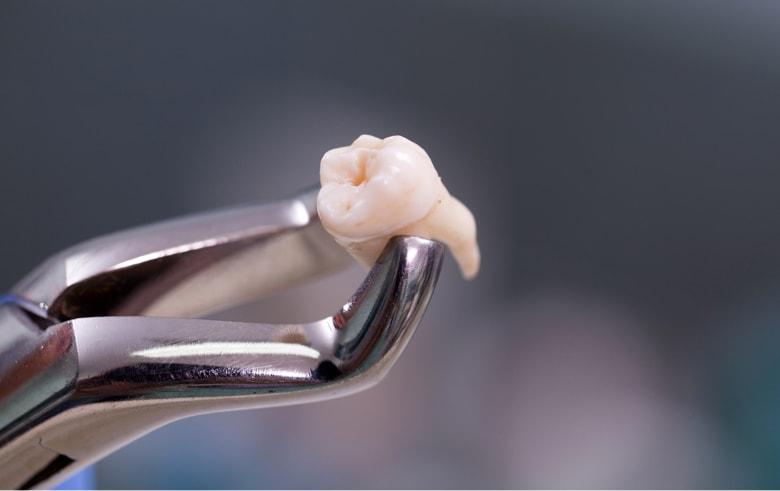Дырка в зубе мудрости лечить или удалять