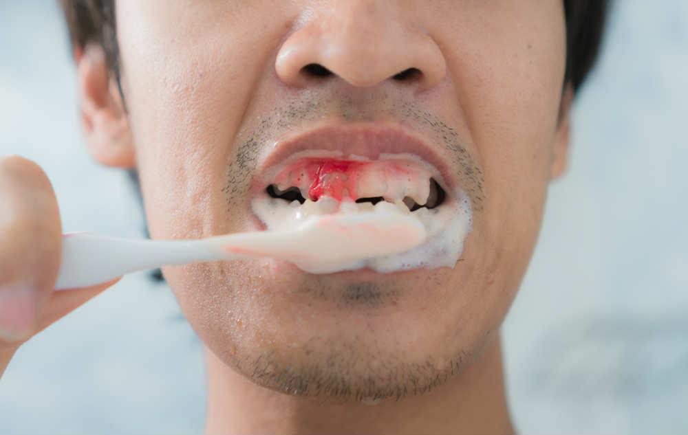 Сильно кровоточат десны при чистке зубов