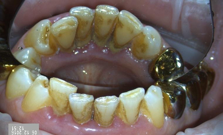Удаление зубного камня брянск