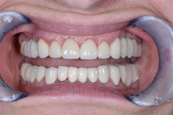 Виниры на зубы инструкция