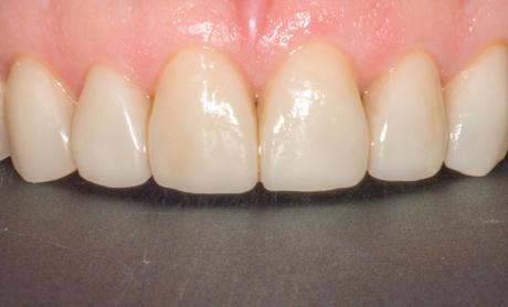 Установка виниров во фронтальной зоне для выравнивания зубов