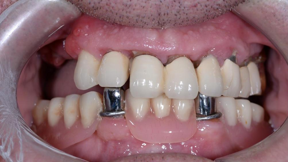 Полное восстановление зубов на нижней и верхней челюсти за 1 месяц |  EsteticaDent.ru