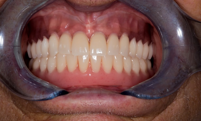 Как держится нижний протез если нет зубов