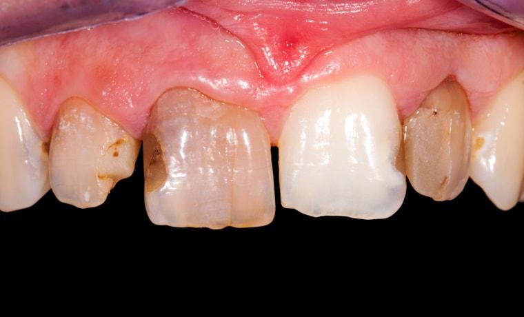 Виды коронок на передний один зуб