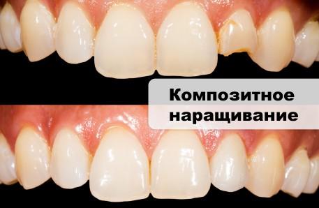 наращивание сломанного зуба